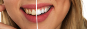 Article 180 300x103 - A More Effective Way of Getting a Brighter Smile